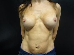 Manhattan Breast Augmentation after 8
